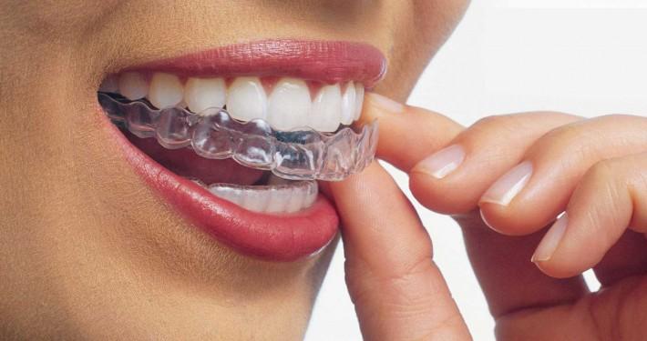 Şeffaf Plak ile Ortodontik Tedavi